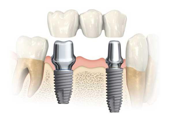 Impianti dentali ad Alzate Brianza | Implantologia