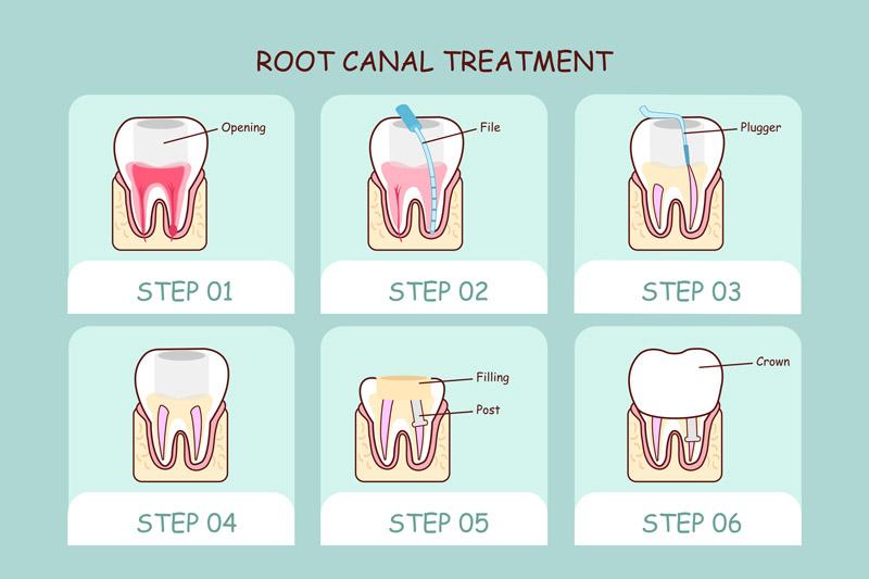 Parodontologia allo studio dentistico Riva