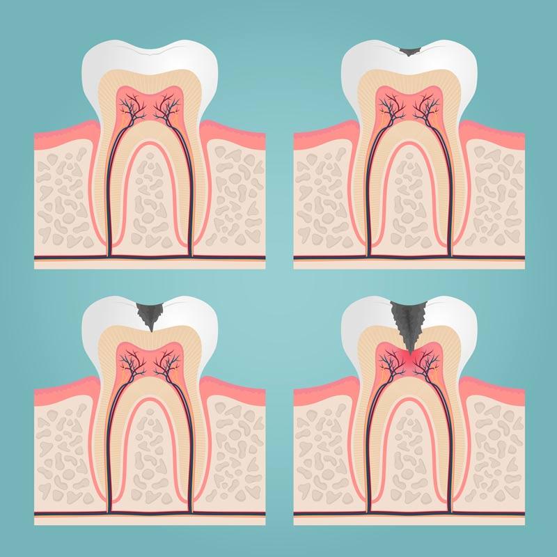endodonzia allo studio dentistico riva