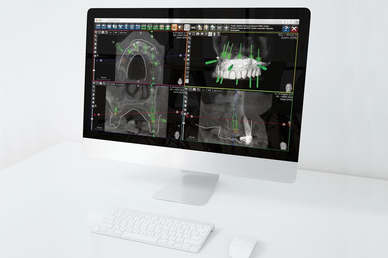 Chirurgia computer guidata allo Studio Dentistico Riva a figino serenza