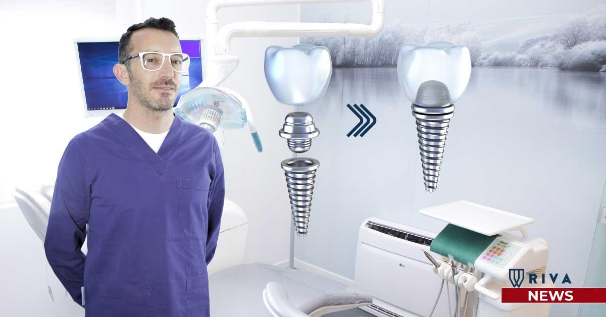 Studio dentistico Riva| Figino Serenza| Alzate Brianza| quanto dura un impianto dentale