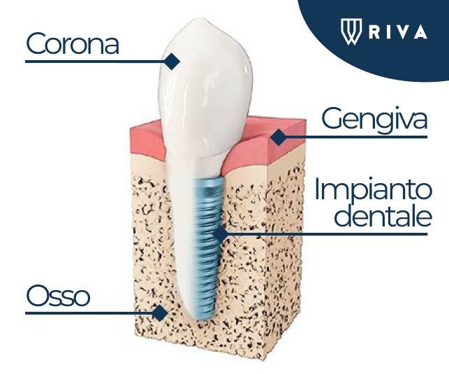 Studio dentistico Riva| Figino Serenza| Alzate Brianza| implantologia| impianto dentale carico immediato